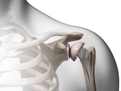 https://www.fcenter.it/wp-content/uploads/2020/07/protesidispalla2-400x300.jpg